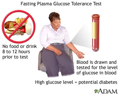 Fasting Glucose intolerance test