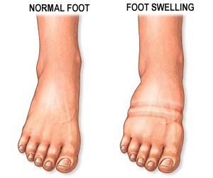 Diabetic Foot Swelling