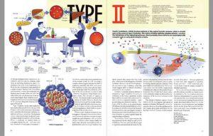 Information on type II diabetes