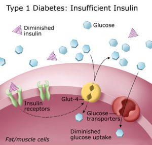 is type 1 diabetes hereditary